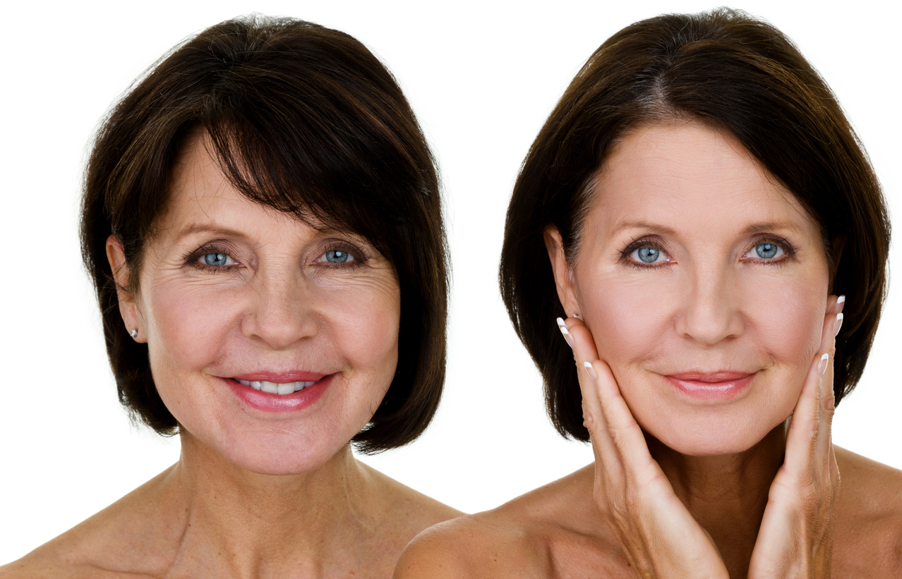 Older woman's face before and after botox