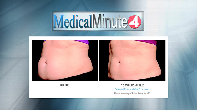 San Francisco CoolSculpting