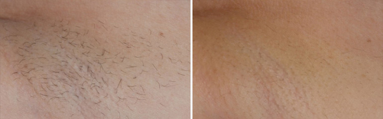 Laser Hair Removal | Dr. Sheena Kong
