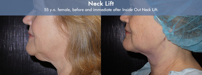 Dr. Sheena Kong's patient before & after her Inside Out Neck Lift