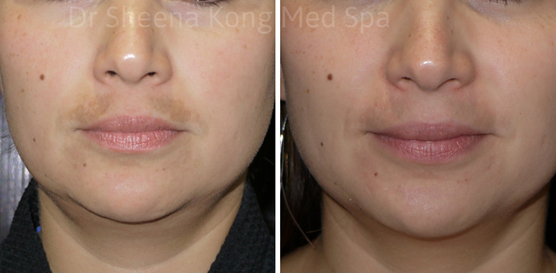 Fraxel Laser Before & After fraxella