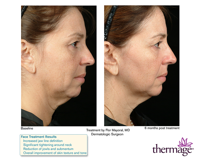 Thermage Before & After thermage